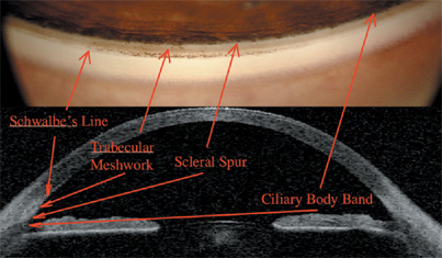 anterior chamber angle measurement with schiempflug cornea Exercise go to www  measurement of central corneal  anterior chamber angle measurement with anterior segment optical coherence.
