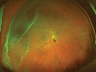 The Device Provides Simultaneous Views Of Macula And Periphery As Well A Zoom Mode For Macular Angiography Retina Specialists Say Technology