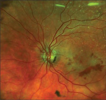 Figure 3 Ophthalmologists Use Ultra Widefield Imaging To Find And Document Abnormalities Such As Wet AMD Shown Here That Might Identify Certain