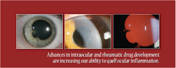 Ocular side effects methotrexate