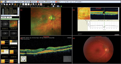 Ophthalmology Management - Linking Your Images to Each Other
