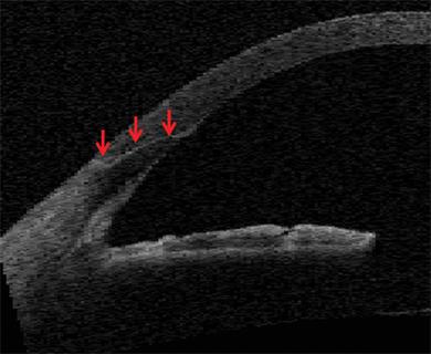 Ophthalmology Management Laser Cataract Surgery