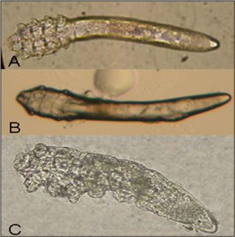 Ophthalmology Management - Do You Know Demodex?