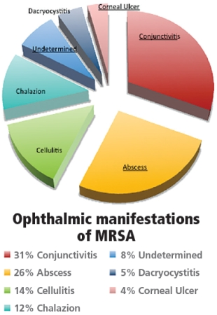 OMD_Nov_A09_Fig01 ophthalmology management your role in curbing the rising threat of