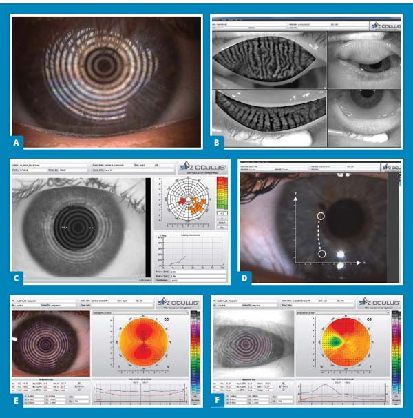Ophthalmology Management - How to be a dry eye 'center of