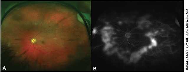 Figure 1. Proliferative diabetic retinopathy: Ultra-widefield fluorescein angiogram (UWFFA) (B) shows the near 360° extent of neovascularization surrounding the posterior pole and the extensive peripheral nonperfusion, which is not apparent on the color fundus photograph (A).