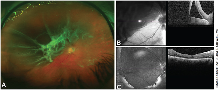 Figure 6. PDR with combined tractional-rhegmatogenous retinal detachment (A and B). Postoperative OCT following vitrectomy surgery shows re-attachment of the macula with restoration of the retinal architecture (C).