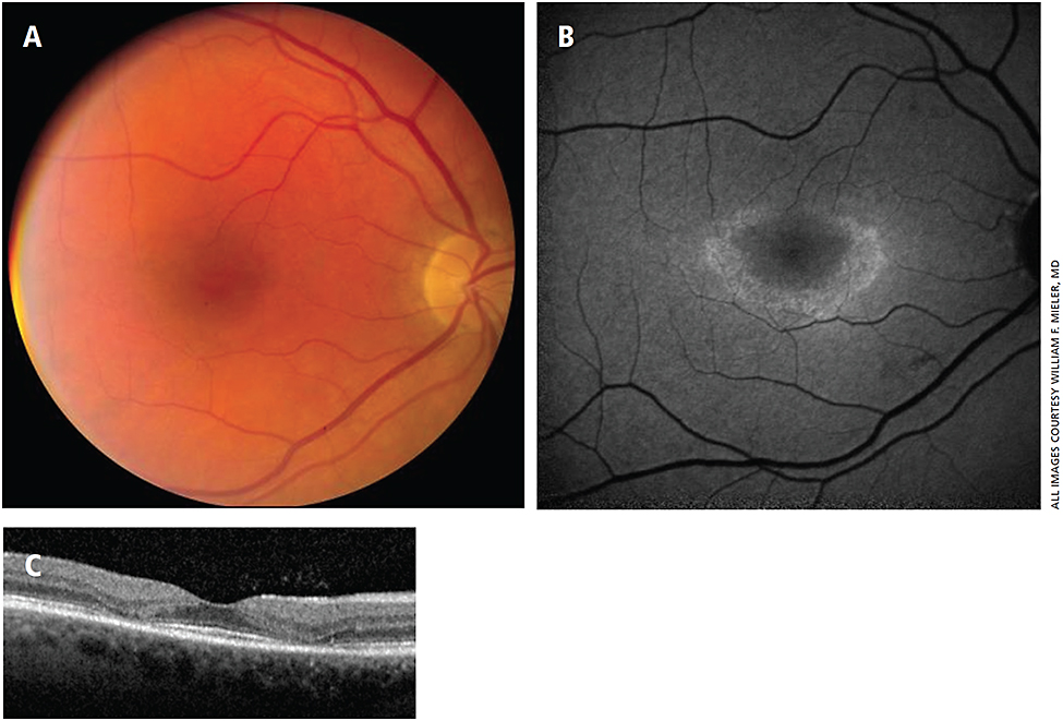 Figure 1. Early hydroxychloroquine toxicity. A 53-year-old female referred for asymptomatic macular pigment mottling. The patient had a history of Sjögren's syndrome, which was treated with 17 years of hydroxychloroquine therapy at doses as high as 7.5 mg/kg/day. (A) Perifoveal pigmentary changes in the right eye. (B) A bull's eye pattern of perifoveal hyperautofluorescence. (C) Perifoveal outer retinal and ellipsoid segment attenuation on OCT.