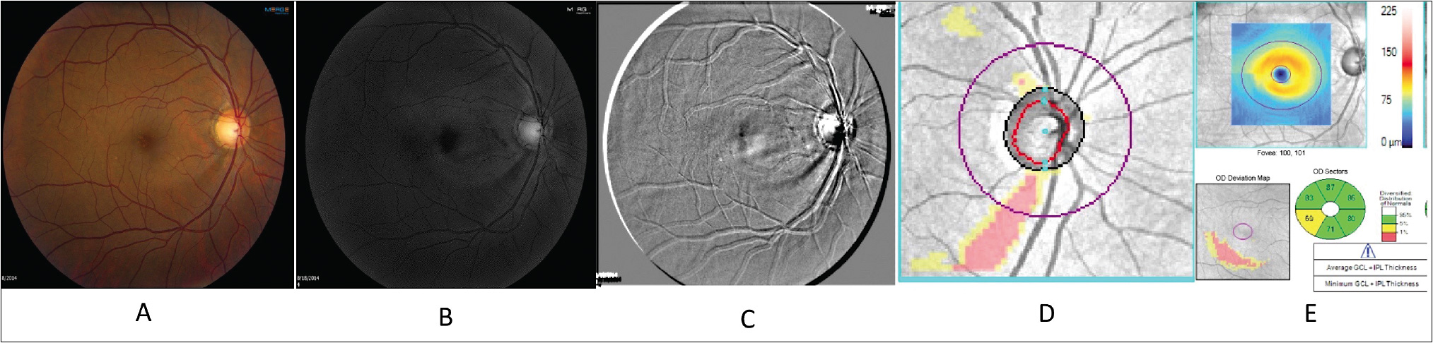 Figure 2. Digital filters during tele-glaucoma enhance retinal nerve fiber layer defect that is detected on OCT (A: Color image, B: Blue channel, C: Emboss filter, D: OCT RNFL defect, E: OCT posterior pole ganglion cell loss).