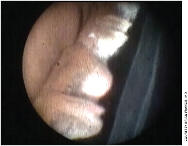 Figure 2. Endoscopic surgical image of endoscopic cycloplasty (ECPL) procedure for severe plateau iris syndrome. The ciliary processes are large and anteriorly rotated against the posterior iris. The processes in the top part of the image have been treated and are shrunken and whitened, while the processes in the bottom part are still large with significant iris contact.