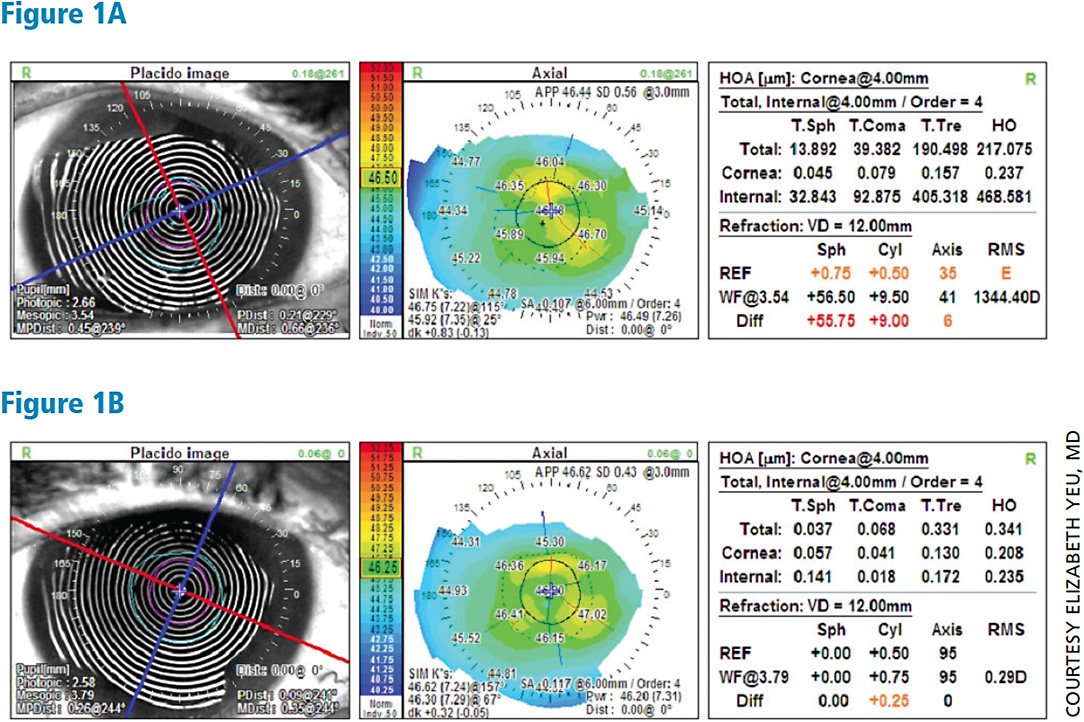 Topography right eye before and after dry eye treatment. Notice placido disc images have sharper and more regular mires in the second image.