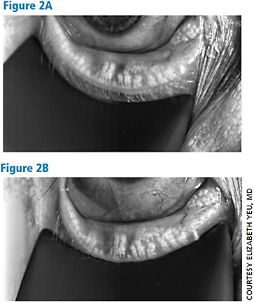 Infrared meibography images taken 6 months apart, immediately before and after LipiFlow thermal pulsation therapy. The disorganized area of acini and truncation demonstrates greater population and some lengthening in same area 6 months later. This begs the question of whether or not meibomian gland could be reversed if caught early enough.