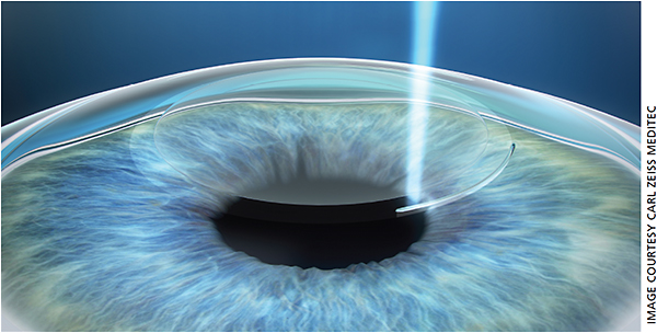 The ReLEx/SMILE procedure requires the VisuMax laser to create a small incision and lenticule inside the cornea ...