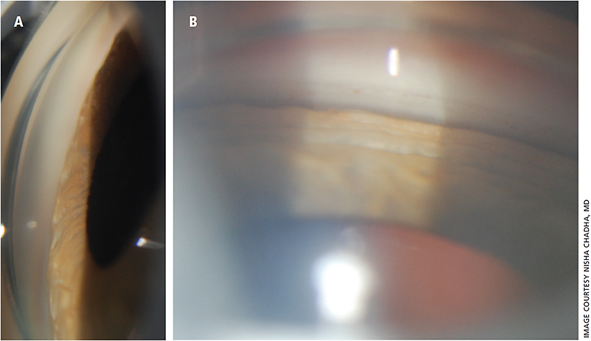 Figure 1: A. Slit lamp photograph of gonioscopy in acute TiACG - forward bowing of iris with no angle structures visible B. Slit lamp photograph of gonioscopy, one week after discontinuation of topiramate with deepened anterior chamber, and open angle (arrow pointing to trabecular meshwork).