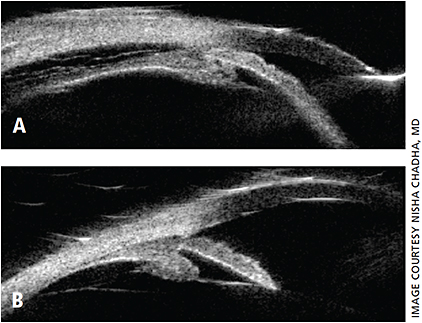 Figure 2: A. UBM showing shallow anterior chamber, anterior rotation of ciliary body with closed angle, and suprachoroidal effusion in the same patient with acute TiACG. B. One week after drug discontinuation, UBM with deep anterior chamber, open angle and resolution of suprachoroidal effusion.