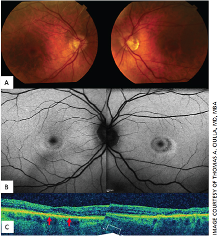 Figure 3. Parafoveal ellipsoid zone loss from hydroxychloroquine retinopathy.