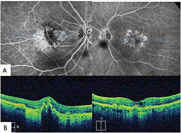 Figure 6. Retinal pigment epithelial tear in neovascular AMD.