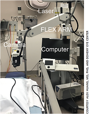 Figure 1. Heidelberg's Spectralis FLEX module arranges the Spectralis so that imaging (optical coherence tomography or angiography) can be performed in a supine position in the operating room. The FLEX is still under development.