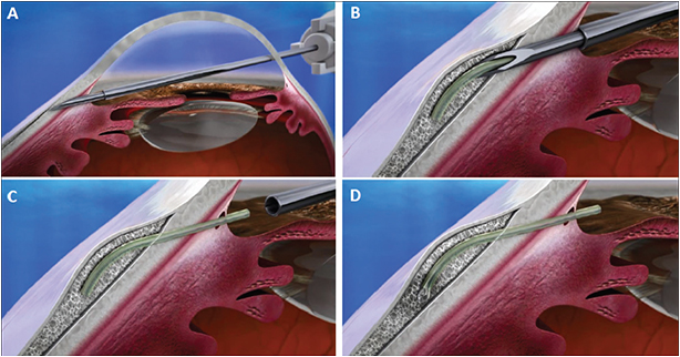Figure 1. (A-D) The XEN Gel Stent is injected into the subconjunctival space through a small, self-sealing corneal incision using a simple, preloaded IOL-like injector.