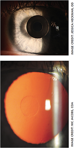 As part of our presbyopia issue, we highlight both the Kamra (top) and Raindrop (bottom) corneal inlays.