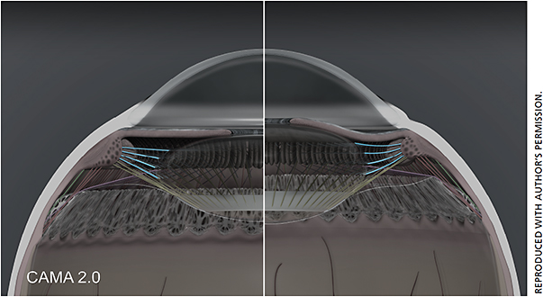 Figure 1. CAMA 2.0 demonstrating anterior zonules in accommodation (right half) and disaccommodation (left half).