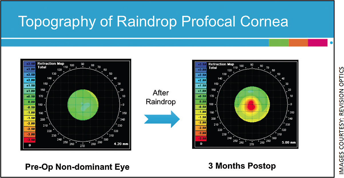 Figure 1. After implantation of the Raindrop Inlay, the cornea steepens in the center to provide a 3+ diopter improvement in near.