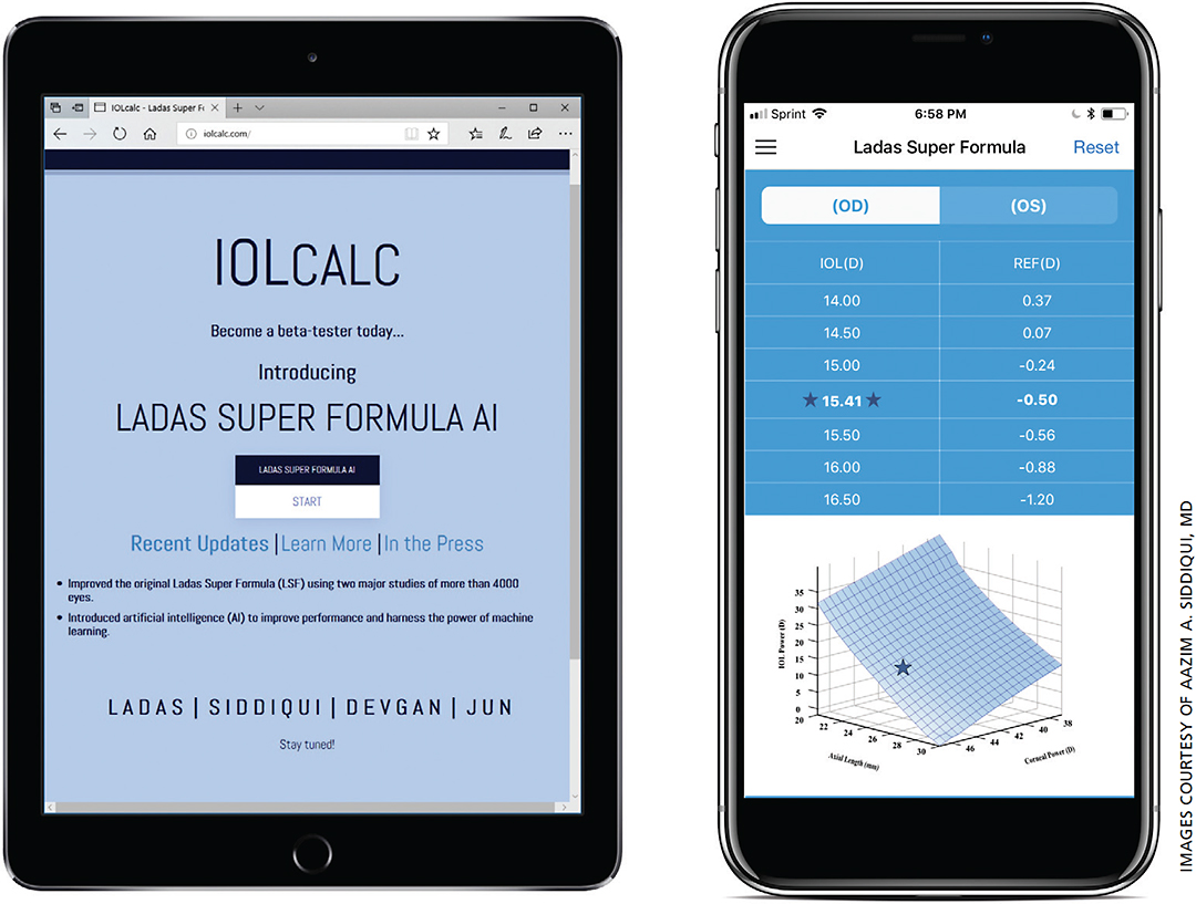 Figure 4. How IOLcalc.com appears when downloaded on iPhone and Android.