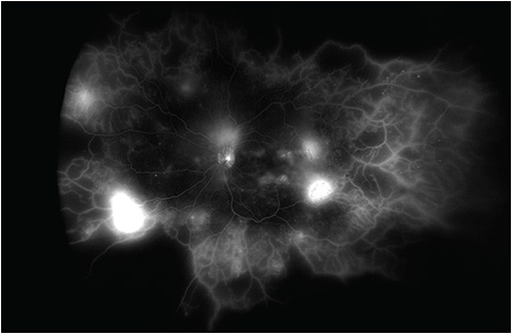 Figure 2. Ultra-widefield fluorescein angiogram (Optos) showing active neovascularization in a patient with proliferative diabetic retinopathy.