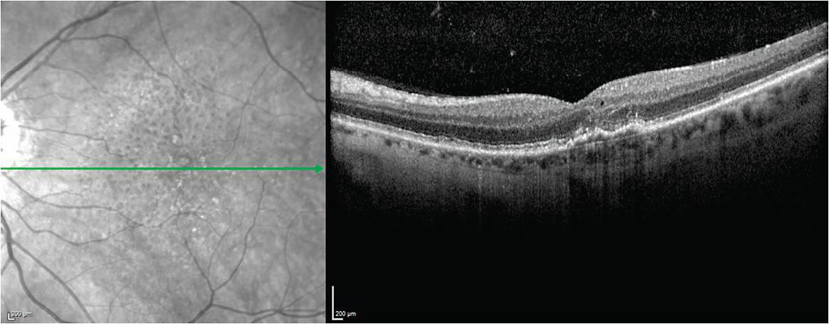 Figure 4. SD-OCT showing irregularity of outer retinal/photoreceptor layer and elevation of RPE with trace intraretinal fluid.