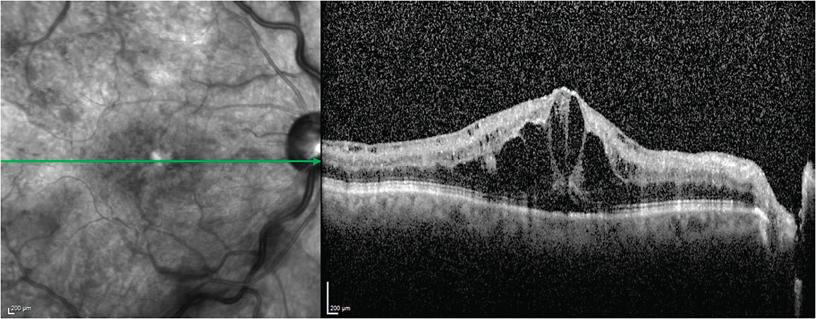 Figure 8. SD-OCT showing macular edema in a patient with central retinal vein occlusion.