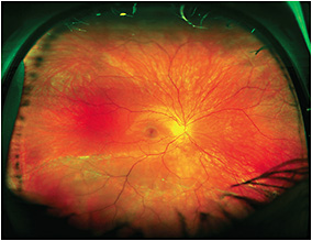 Figure 1. Inferior macula-on rhegmatogenous retinal detachment in a 26-year-old woman with superior visual field defect noted on routine examination.