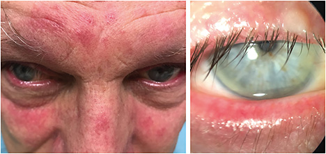 Ophthalmology Management Relieve Severe Rosacea With Ipl