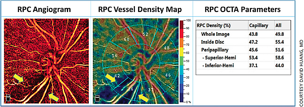 Figure 2. The 4.5 mm x 4.5 mm high-definition (400x400 scans) angiogram of a perimetric glaucomatous eye was quantified by AngioAnalytics. The glaucomatous perfusion defect could be visualized in the RPC angiogram and vessel density map (arrows). The vessel density and capillary density were significantly reduced in the inferior hemisphere, more specifically in the inferior temporal sectors.