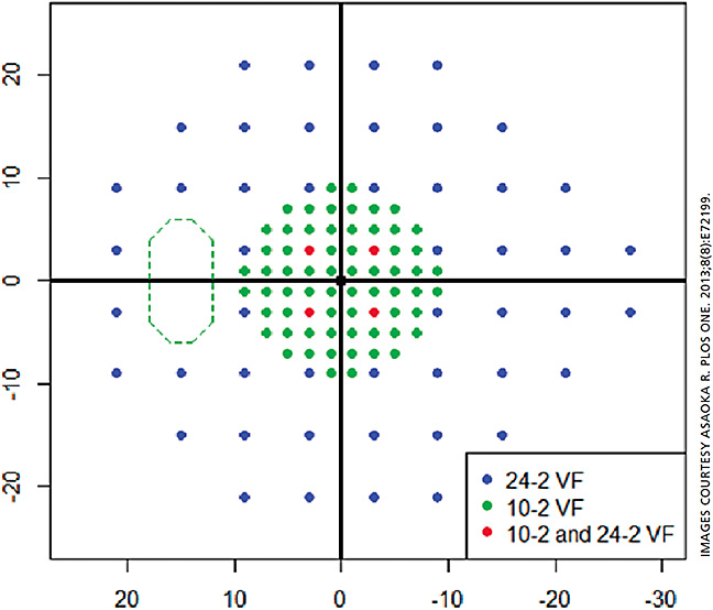 Figure 1: Mapping of 10-2 and 24-2 VF test points. Blue and green circles represent test points in the 24-2 VF and 10-2 VF, respectively. Red circles show points tested by both the 24-2 VF and 10-2 VF.15