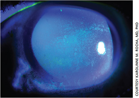 Figure 1. Slit lamp photo of diffuse punctate fluorescein stain consistent with severe keratoconjunctivitis sicca.