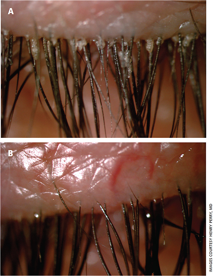 Figure 3. A. Demodex blepharitis before four-minute microblepharoexfoliation. B. Demodex blepharitis immediately after treatment.