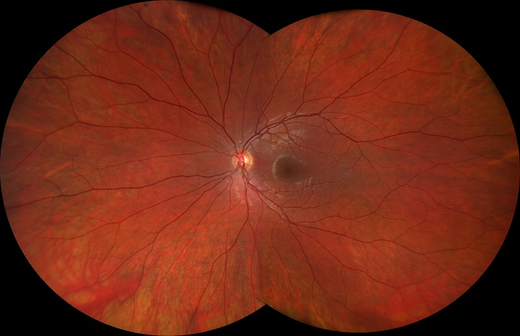 Figure 2. A myopic fundus, as captured by a Zeiss Clarus 500 camera.