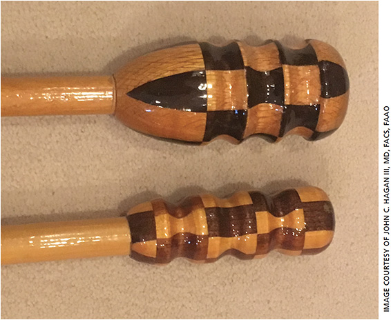 "Dr. Hagan's first IOL patient made these two canes as a ""thank you"" for his cataract surgery."
