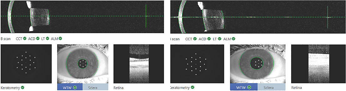 Figure 1. The swept-source OCT imaging system easily shows whether an eye was fixated during measurement and imaging.