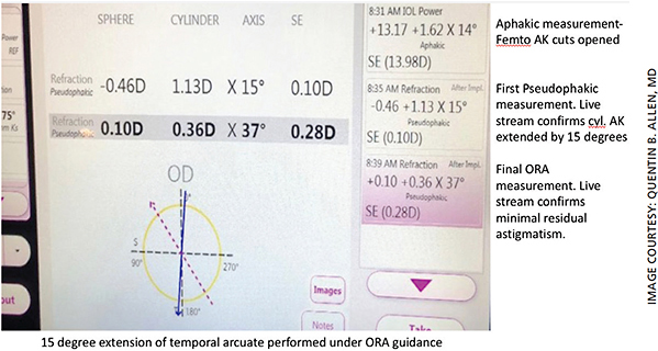 Figure 2. Initial pseudophakic measurement and final IA measurement demonstrating residual astigmatism of 0.36 D.