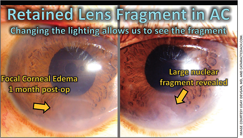 Figure 1. Focal corneal edema (left), which blocked the view of the retained lens fragment until an adjustment in the lighting revealed a large nuclear piece at the inferior angle (right).