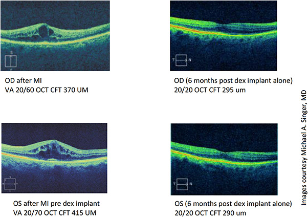 Figure 2: OCT readings from patient using Ozurdex, following cataract surgery and heart attack.