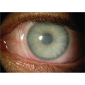 Amniotic Membrane For Ocular Inflammation