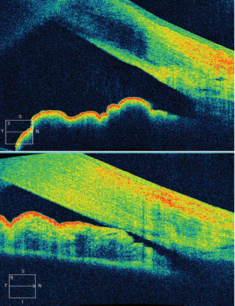 The art and science of glaucoma management