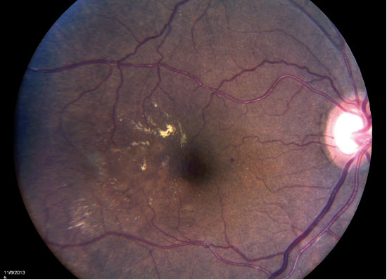 Diabetes, the eye and treatment of both: refractory DME
