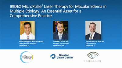 IRIDEX MicroPulse Laser Therapy for Macular Edema in Multiple Etiology