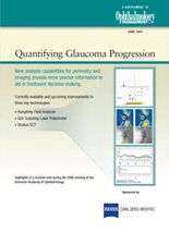 Quantifying Glaucoma Progression