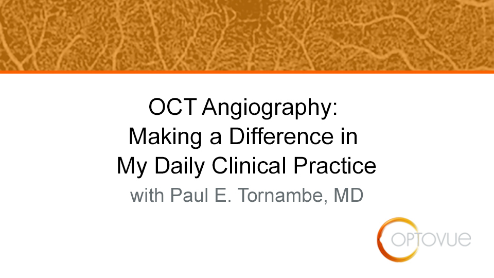 OCT Angiography: Making a Difference in My Daily Clinical Practice