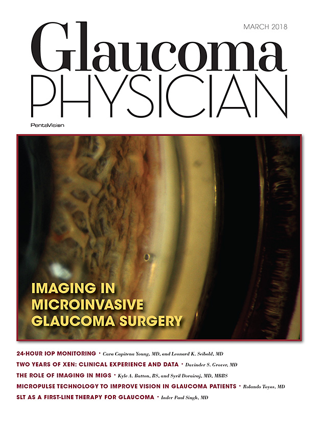 March 2018 Glaucoma Physician
